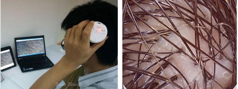美容MS-55WF(皮膚/肌・頭皮観察)